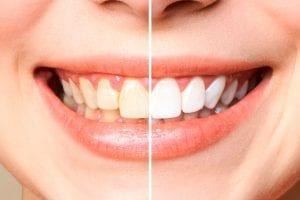 Como deixar os dentes brancos: dicas importantes e hábitos para adotar