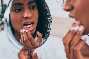Dente cariado: como identificar, tratamento e prevenção