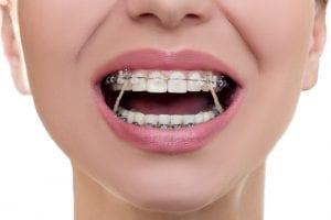Qual a função do elástico ortodôntico no tratamento?